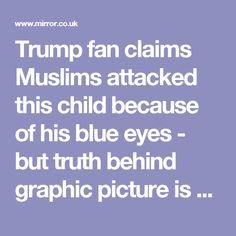 Trump fan claims Muslims attacked this child because of his blue eyes - but truth behind graphic picture is very different - Mirror Online