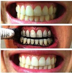 La mejor manera de blanquear los dientes naturalmente1