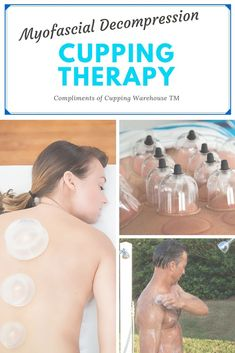 Cupping Therapy, Massage Therapy, Cupping Massage, Median Nerve, Muscle And Nerve, Neck And Back Pain, Acupressure Points, Chiropractic Care, Mind Body Spirit