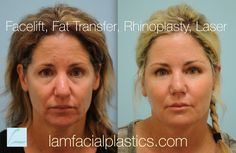 Facelift, Rhinoplasty, Fat Grafting, Laser Facial Fillers, Fat Transfer, Skin Resurfacing, Rhinoplasty, Your Skin, How To Remove, Eye, Beauty, Beauty Illustration