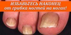 ИЗБАВЬТЕСЬ НАКОНЕЦ от грибка ногтей на ногах! | Полезные советы