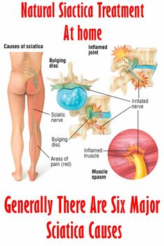 [Article and Treatment Tips] Generally There Are Six Major Sciatica Causes #sciatica #pain #relief #symptoms #treatment #backpain #lowerbackpain