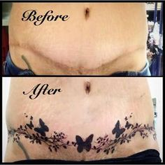 More delicate tummy tuck cover up tattoo for scar incision ...