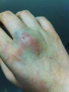 bruises on knuckles - Google Search