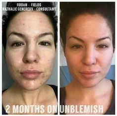 Check out our supreme skincare line! Just 5% under prescription grade!! Http://sarahbeaver.myrandf.com (Sharing story) Meet Nathalie! Check out her before and afters! Nathalie is a Professional Esthetician by trade, which means she has access to great skin care products. But what did she turn to to treat her acne? R+F Unblemish!! Unblemish is the #1 Premium Acne care in the U.S. for a reason.....It Works!! #clearskin #greatproductsgreatresults #byebyeacne