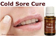 """~ Give COLD SORES Some LIP! ~ Believe me, I've tried them all. Nothing works like Thieves Essential Oil because it is """"anti-viral."""""""