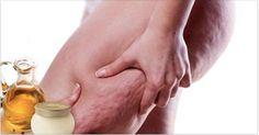 A celulite é uma inflamação nas células de gordura.Muita gente pensa que se trata de um problema relacionado com o excesso de peso. Mas não é bem assim. Pessoas magras também podem sofrer deste mal.