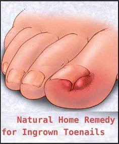 AUGUST 4, 2013 by POSITIVEMED -Natural Home Remedy for Ingrown Toenails