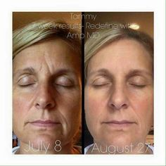Rodan +Fields.... Simply put, the products work!  Message me now to get the best skin of your life.
