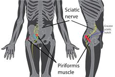 Do you have to deal with these vivid and insane pain that come from a pinched sciatica nerve? So you must find ways to relieve sciatica ne...