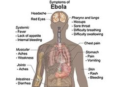 Symptoms of Ebola Virus #Ebola #Africa #nursepractitioner