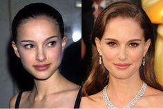 Natalie Portman Nose Surgery