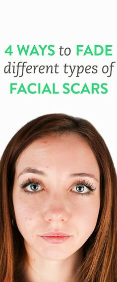4 Ways to Fade Acne Scars