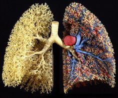 Cast of human lungs, showing blood vessels on one side. Photo courtesy Ewald Weibel, Institute of Anantomy, University of Berne.