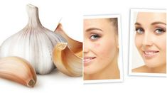 Garlic face pack is very good to face. It takeoff of all the dark spot and dead cells on the face. Garlic face pack will rid of dark spots, blackhead etc Diy Skin Care, Flawless Skin, Dark Spots, Glowing Skin, Health And Beauty, Rid, Garlic, Hair Beauty, How To Get