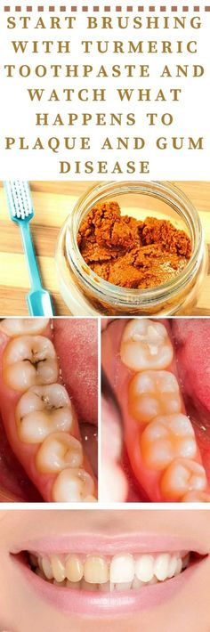 Start Brushing With Turmeric Toothpaste And Watch What Happens To Plaque And Gum Disease - Healthy Living Team #healthygum #TumericGlowingSkin Gum Health, Teeth Health, Healthy Teeth, Oral Health, Dental Health, Dental Care, Health And Wellness, Health Tips, Health Fitness