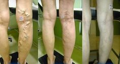 Heal Your Varicose Veins With A Mix Of Aloe Vera, Carrot And Apple Cider…