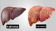 Obat Alternatif Kanker Hati