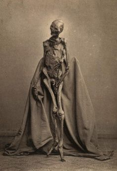 Photograph of found bog body of 1873. The body had been found in 1871 in the Heidmoor near de:Rendswühren and is now on display at Gottorf Castle, Schleswig Germany. Dated around 1st or 2nd century AD~