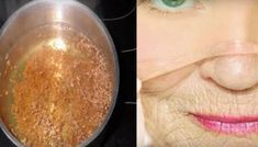 Homemade botox without a syringe! Diy Beauty, Beauty Hacks, Face Massage, Natural Cosmetics, Good Advice, Detox, Health And Beauty, Manicure, Health Fitness