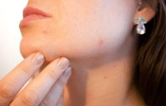Having acne-prone skin can take a huge toll on your confidence. Which is why we are here to help you. Scroll down to check out, how you can prevent and treat acne and pimples, without spending a lot of money. Natural Acne Remedies, Home Remedies For Acne, Red Spots On Face, Dark Spots, Brown Spots, Double Menton, Rhassoul, How To Get Rid Of Pimples, Acne Scar Removal
