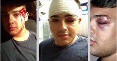 Dez dias depois do ataque, o jovem de 18 anos se recupera dos ferimentos causados na cabeça, embora a maior consequência seja as cicatrizes deixadas pela homofobia.