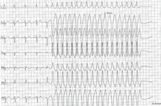 Wide complex tachycardia with no change in QRS direction in the limb leads Ventricular Tachycardia, Atrial Fibrillation, Qrs Complex, P Wave, Alcohol Withdrawal, Nursing, Change, Breastfeeding
