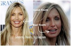 heather thomas before and after