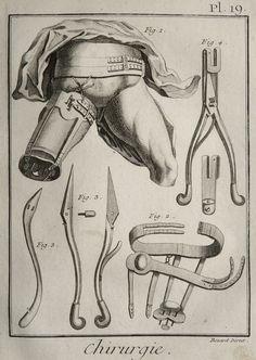 1779. Orthèses. Pl. 19. Chirurgie. Denis Diderot and Jean le Rond d'Alembert. Encyclopédie.