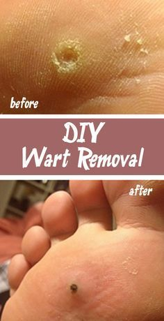 9 best plantar warts images health home remedies natural remedies rh pinterest com
