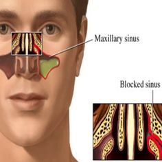 7 Home Remedies For Sinus Congestion