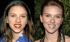 Scarlett Johansson before and after nose job (rhin. Scarlett Johansson before and after nose job (rhin… – Unique Engagement Rings Scarlett Johansson before and after nose job (rhin… Scarlett Johansson before and after nose job (rhinoplasty) Bad Plastic Surgeries, Plastic Surgery Gone Wrong, Scarlett Johansson, Carla Perez, Cheek Implants, Celebrity Plastic Surgery, Nose Surgery, Celebrities Before And After, Operation