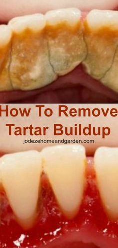 How To Remove Tartar Buildup. Of course, the best way to remove tartar buildup is paying a visit to your dentist, but there are other ways to remove tartar buildup from your teeth at home. Teeth Health, Oral Health, Dental Health, Dental Care, Dental Hygiene, Health Diet, Healthy Teeth, Gum Health, Diet