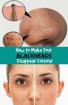 Life Tips And More !: How to Make Your Blackheads Disappear forever Life Tips And More !: How to Make Your Blackheads Disappear forever Natural Health Tips, Natural Skin, Beauty Skin, Health And Beauty, Healthy Beauty, Healthy Women, Beauty Secrets, Beauty Hacks, Beauty Guide