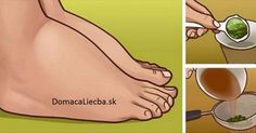 Watch This Video Ambrosial Home Remedies Swollen Feet Ideas. Inconceivable Home Remedies Swollen Feet Ideas. Foot Remedies, Arthritis Remedies, Headache Remedies, Skin Care Remedies, Health Remedies, Parsley Tea, Water Retention Remedies, Cold And Cough Remedies, Swollen Ankles