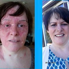 28 days later with #Renu28 what a change she must be stoked #ASEA #australia http:annieinfinite.teamasea.com