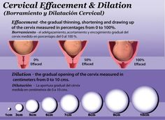 Cervical Effacement & Dilation Chart