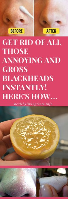 Get Rid Of All Those Annoying and Gross Blackheads Instantly! Here's How… - Healthy Living Team