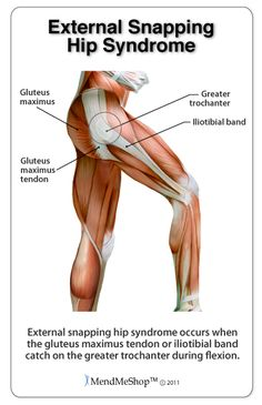 External snapping hip syndrome occurs when the IT band or gluteus maximus tendon catch on the greater trochanter. stretching tips, flexibility Hip Flexor Pain, Hip Flexor Exercises, Hip Pain, Hip Flexors, Muscle Anatomy, Body Anatomy, Human Anatomy, Snapping Hip Syndrome, Psoas Iliaque