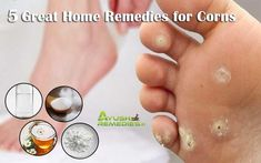 Natural Home Remedies to Get Rid of Corns on Feet, Toes Hands and Fingers Loading. Natural Home Remedies to Get Rid of Corns on Feet, Toes Hands and Fingers Toe Corn Removal, Corn On Toe, Corn Feet, Get Rid Of Corns, Foot Remedies, Healthy Nails, Essential Oil Uses, Quites, Natural Home Remedies