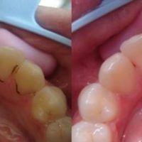 Udělejte toto jednou týdně a vaše zuby budou bílé jako perly