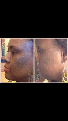 For more information about NeriumAD, or to place an order, go to www.bella.nerium.com  or  http://bella.theneriumlook.com