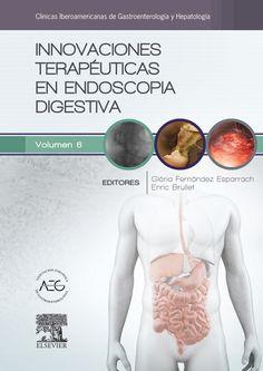 Innovaciones terapéuticas en endoscopia digestiva. http://tienda.elsevier.es/innovaciones-terapeuticas-en-endoscopia-digestiva-pb-9788490229538.html