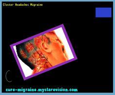 Cluster Headaches Migraine 133600 - Cure Migraine