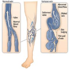 Send Varicose Veins Packing with this Surprising Change - Natural Health - MOTHER EARTH NEWS