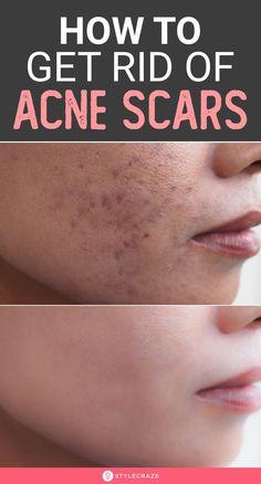 Pimple Marks, Acne Marks, Scar Remedies, Skin Care Remedies, Pimples Remedies, How To Remove Pimples, How To Get Rid Of Acne, Best Skin Care Regimen, Acne Spots