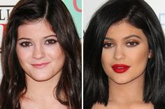 Kylie JennerRead more: Most Expensive Celebrity Plastic Surgeries Follow us: cyberbreeze on Facebook It looks like the Jenners and Kardashians have a thing for plastic surgeries. Kylie is the youngest in the family but she has the most expensive surgeries of all. Well, it looks like she is benefiting from her $1 million surgery because she has already received many modeling offers.