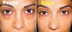 La pelle del contorno occhi, con la sua scarsa presenza di ghiandole sebacee, è una delle zone più delicate del viso. Rimedi naturali per le borse
