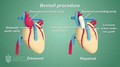 The surgery carried out to correct the problems related to Aorta (the artery which carries oxygen-rich blood from the heart to the rest of the body). Heart Procedures, Cardiac Rehabilitation, Aortic Dissection, Aortic Aneurysm, Top Hospitals, Heart Health, How To Fall Asleep, Surgery, Health Care