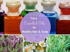 Essential oils such as lavender and chamomile can be extremely helpful to soothe dry, irritated scalp.